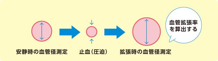 FMD(血流依存性血管拡張反応)の図